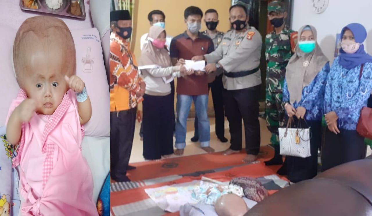 Peduli Sesama, Kasubsektor Abung Tinggi Lampung Utara Galang Dana Bantu Biaya Pengobatan Radhitya